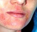 Маски для лица, улучшающие кожу при дерматите
