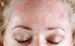 Какие заболевания кожи могут поражать лицо