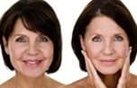 Как убрать загар с лица – народные, домашние и салонные методы