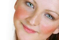 Почему краснеет лицо - наиболее частые причины